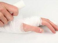 什么是腱鞘囊肿?